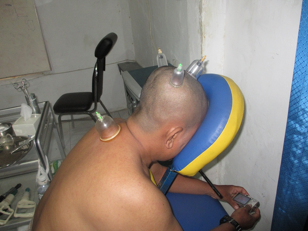 Terapi Bekam di Surabaya