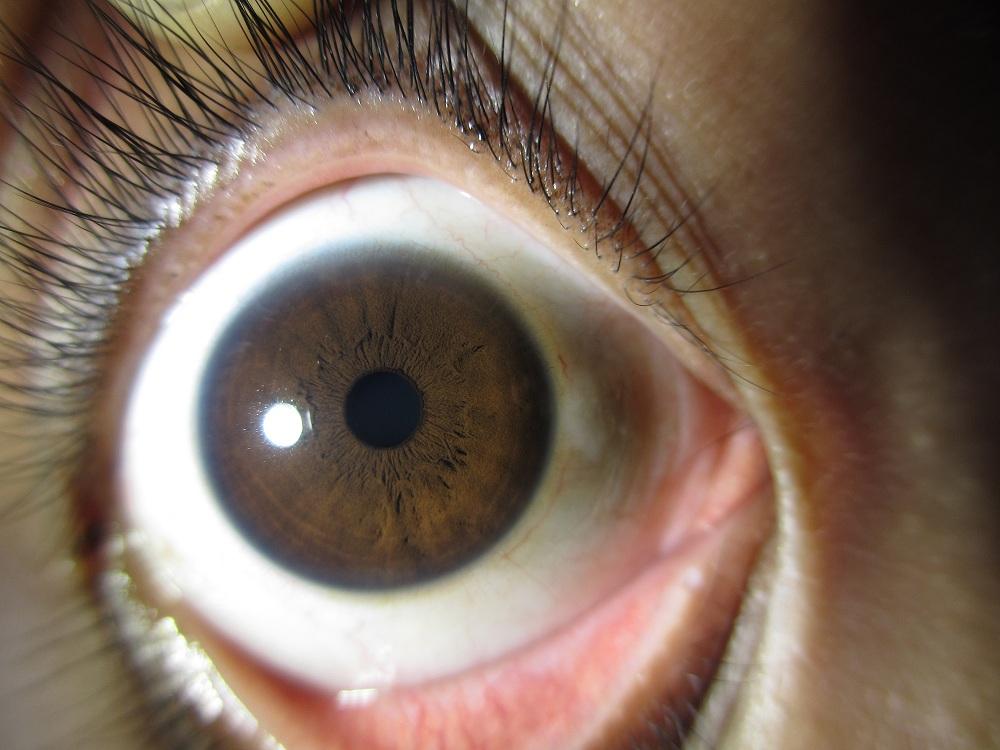 pelatihan iridologi
