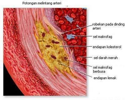 arteriklorosis