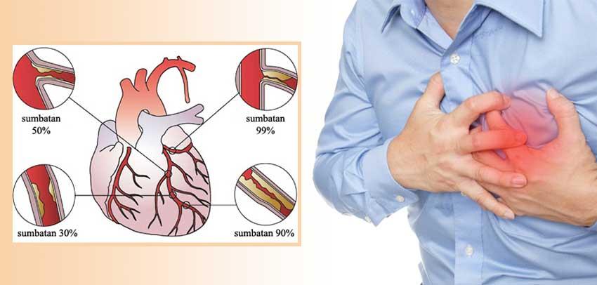 gejala penyakit jantung koroner surabaya