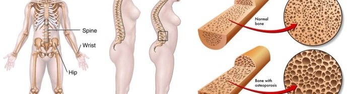 jual obat Osteoporosis murah terbaik surabaya sidoarjo